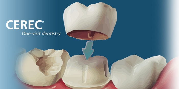 Special Offer on Porcelain Crowns – Save upto $1000 per Crown