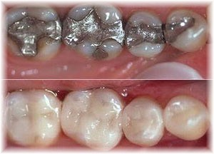 Don't have private dental insurance but need a crown or veneer?