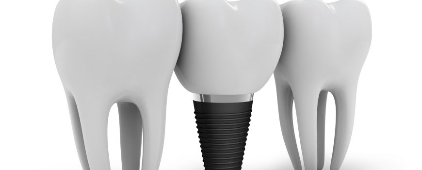 Free Dental Implant Consultation – Are you a suitable candidate for a dental implant?